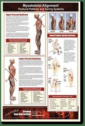 Myoskeletal Alignment Poster by Erik Dalton